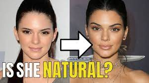 Kendall Jenner: Plastic Surgery - YouTube