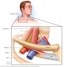 Thoracic Outlet Syndrome Pain Pattern