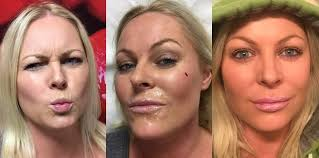 How long after botox can you lay down