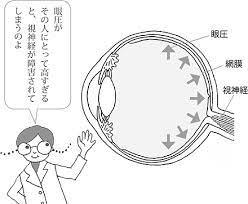 眼 圧 が 高い