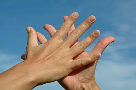 Symptom of Peeling Skin on Hands | LIVESTRONG.COM