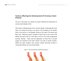 top tips for writing an essay in a hurry coronary heart disease coronary heart disease essay