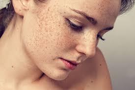 Znalezione obrazy dla zapytania freckles