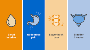 But if you have any symptoms, it is important to get them checked by your gp. Roche Understanding The Impact Of Bladder Cancer