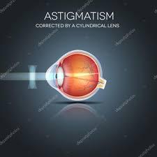 Astig Logo Design Astigmatism Corrected By A Cylindrical Lens Stock Vector
