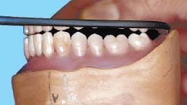 teeth setting 9 occlusion and implant supported overdenture pocket dentistry