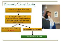 Mechanism Of Balance Vestibular Function Test Dr Utkal Mishra