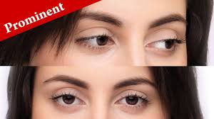 how to imately know if your eyes are prominent or protruding