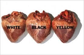 Risultati immagini per razzismo
