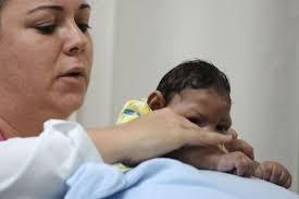 Resultado de imagem para filhos com microcefalia fotos