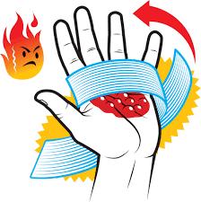 Первая помощь при ожогах термических химических и электрических  Первая помощи при ожогах