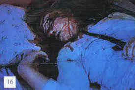 Image result for south african farmers tortured