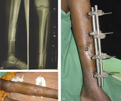external fixator use of external fixators for open tibial injuries in the rural third