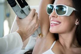 laser for upper lip hair removal