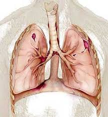 плеврит Туберкулезный плеврит