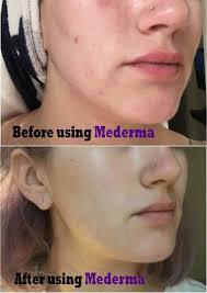 Mederma Acne Scars Cream Acne Remedies Acne Scars Scar Cream