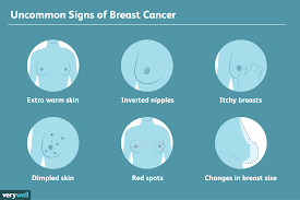 Why Are My Areolas So Light Rare Signs Of Breast Cancer
