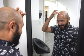 Alex Longoria • Scalp Micropigmentation Practitioner at Hairline ...