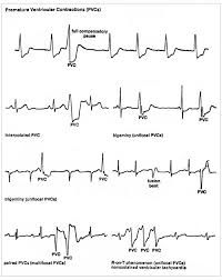 Types Of Arrhythmia Chart Ekg Interpretation