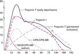A Quick Review Of Troponin S Medical Lab Science Student