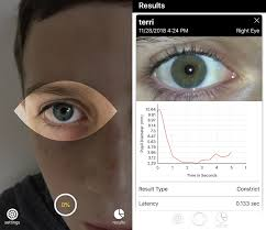 Eye Light Test For Concussion Brightlamp Launches Smartphone App That Can Rapidly Monitor