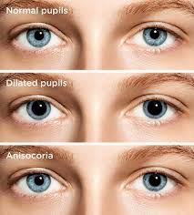 Normal Pupil Size Chart Dilated Pupils Causes And Concerns