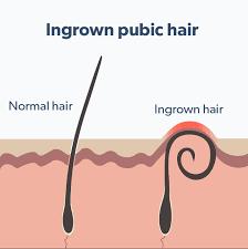 what is an ingrown hair roman