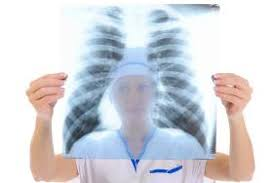 X Ray Technician What Courses Are Required To Become An X Ray Technician