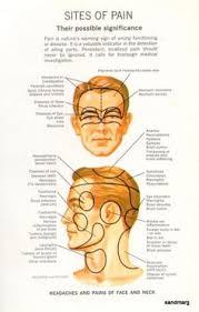 Cogent Headache Charts Headache Chart And Meaning Headache