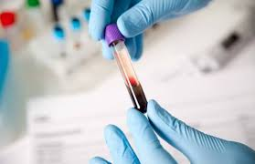 Image result for blood tests