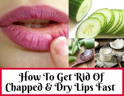 how do you get rid of chapped lips fast