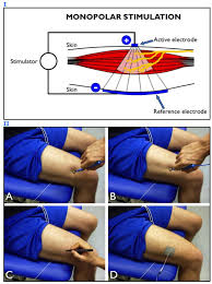 Motor Points For Electrical Stimulation Chart Muscle Motor Point Identification Is Essential For
