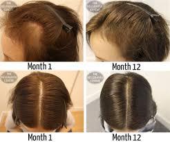 hair growth treatment mask