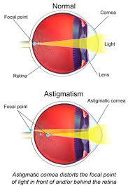 Astigmatism Chart Astigmatism Wikipedia
