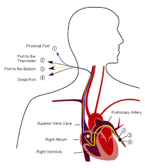 Central Venous Pressure Measurements Pulmonary Artery Catheter Wikipedia