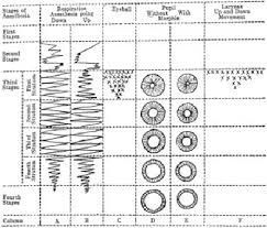 Anaesthetic Monitoring Chart Schematic Chart Devised By Guedel In The First World War