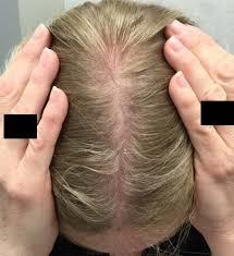 Female Pattern Hair Loss Simple Hair Growth Treatments Dy Dermatology