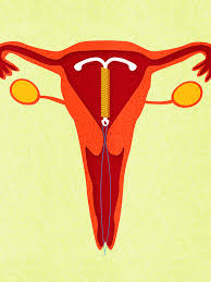 when is it ok to get your iud removed