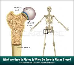 Growth Plate Closure Chart What Are Growth Plates When Do Growth Plates Close