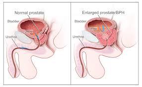 Rezultate imazhesh për karcinoma e prostates