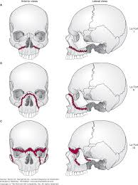 Le Fort Fracture Chapter 23 Maxillofacial Neck Trauma Current Diagnosis