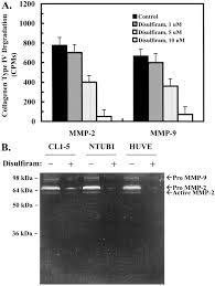 Disulfiram Reaction Inhibition Of Invasion And Angiogenesis By Zinc Chelating Agent