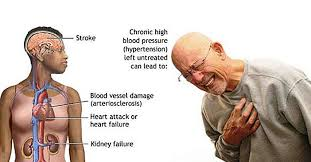 Image result for atherosclerosis signs and symptoms