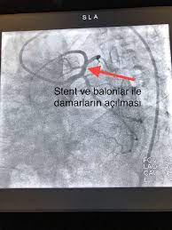 """Uživatel Doç. Dr. M. Kadri Akboğa na Twitteru: """"@mlk_krml nexivol nabız  düşüklüğü yapabilen bir ilaç değiştirilebilir"""" / Twitter"""