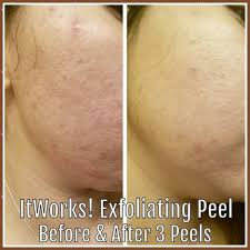 it works exfoliating peel before and after exfoliating peel let health and wealth rhyme for you