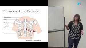 Ekg Lead Placement Chart 12 Lead Ecg Placement