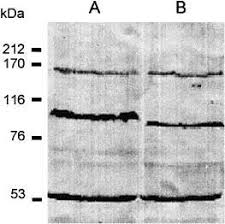 Growth phase‐dependent subcellular localization of nitric oxide synthase in  maize cells - Ribeiro - 1999 - FEBS Letters - Wiley Online Library