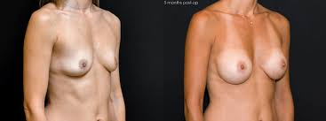 Sensual Tantra Massage For You Naked Girls A Huge Range Of Rare.