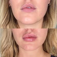 lip augmentation nyc lip augmentation