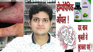 Homeopathic medicine for Itching ? खुजली की ...